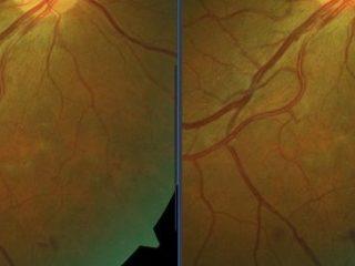 Resolución de la hemorragia pre-retiniana tras tratamiento láser 577 en CW subumbral