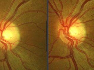 O.I: Observese en la imagen de la izquierda la neovascularización e hiperemia del disco postratamiento vs pre-tto