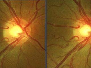 O.D: Observese en la imagen de la izquierda la neovascularización e hiperemia del disco postratamiento vs pre-tto