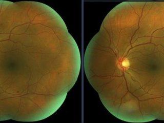 Retinografía de 7 Campos de ojo izquierdo