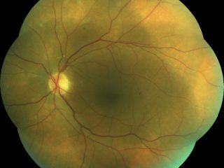 Retinografía de 7 campos del ojo izquierdo en edema macular diabético tras tratamiento de fotomodulación láser 777