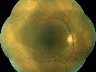 Retinografía de 7 campos del ojo derecho en edema macular diabético tras tratamiento de fotomodulación láser 777