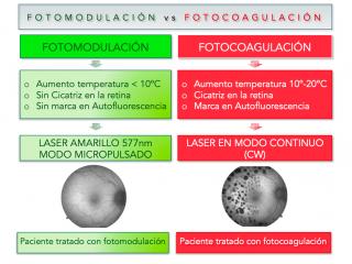 Fotomodulación en Edema Macular
