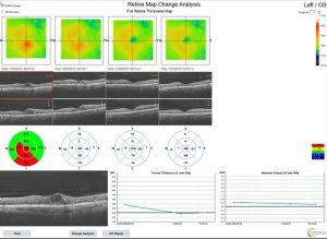 edema macular evolución tras fotomodulación