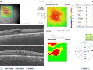 Paciente con Edema Macular Diabético clínicamente significativo previa al tratamiento