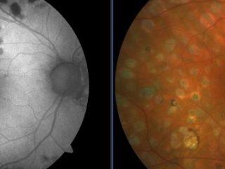 Ojo derecho de paciente diabético pantofocoagulado con láser 532 nm. Retinografía vs autofluorescencia. Obsérvese las cicatrices coriorretinianas.