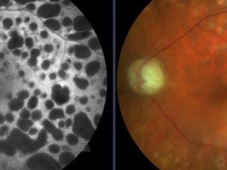 Ojo izquierdo de paciente diabético pantofocoagulado con láser 532 nm. Retinografía vs autofluorescencia. Obsérvese las cicatrices coriorretinianas y la palidez papilar